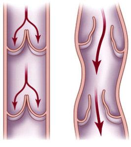 недолік сполучної тканини вен і порушення повного замикання венозних клапанів