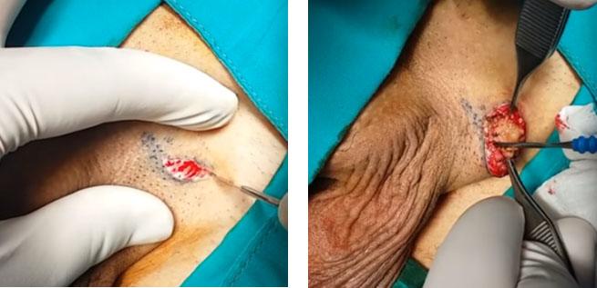 Розсічення шкіри над насіннєвим канатиком