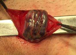 Лікування варикоцеле операція фото