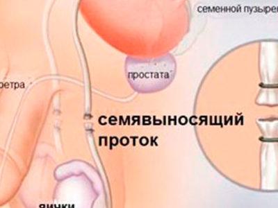 Вазэктомия стерилизация мужская в Николаеве фото