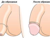 обрезание крайней плоти в Николаеве фото