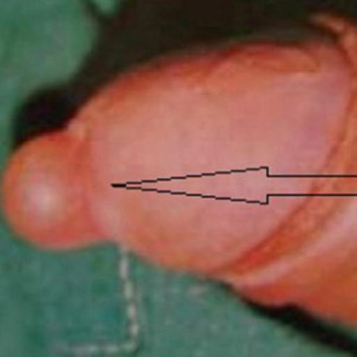 Кіста на головки члена фото