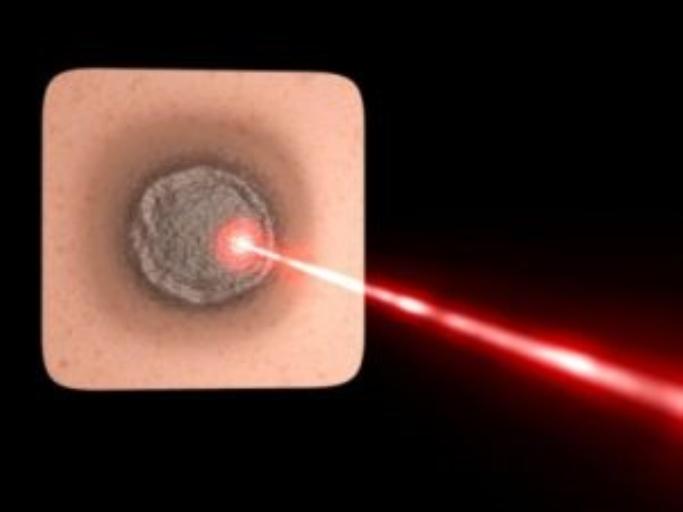 Технологія видалення гігантської пухлини