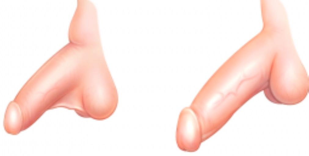 Збільшення статевого члена шляхом лігаментотомії