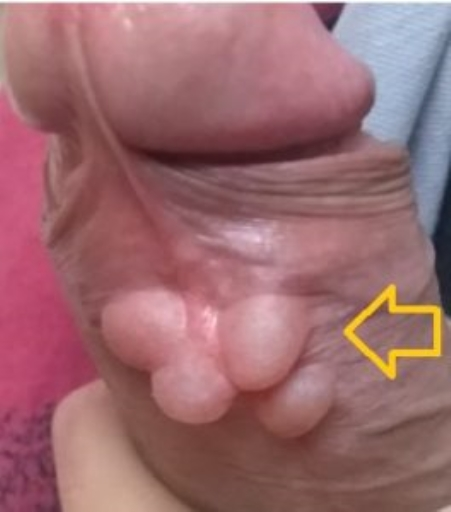 Множинні кісти крайньої плоті статевого члена.