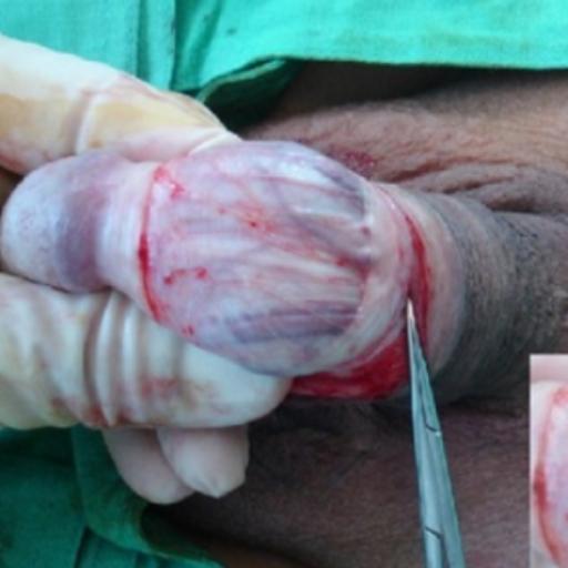 1.Лигирование вен через микроразрез под венцом головки