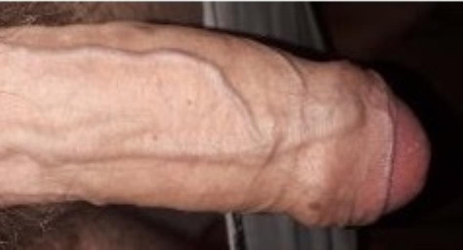 Фото вен члена до флебектоміі