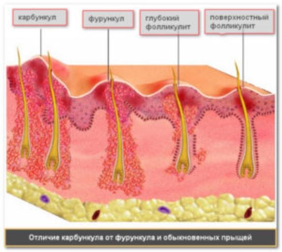 Фолікуліт статевих органів у чоловіків
