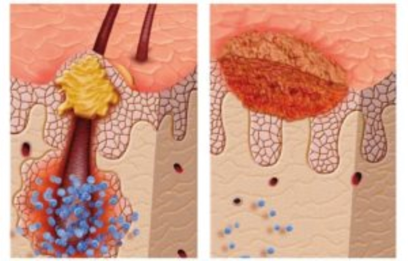 залишатися рубці на місці загоєння тканин
