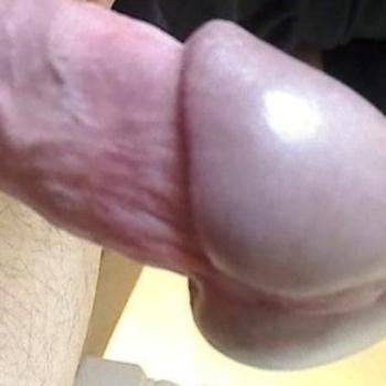 Фото після потовщення голівки члена філлерами