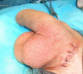 Вид мошонки после имплантации яичка