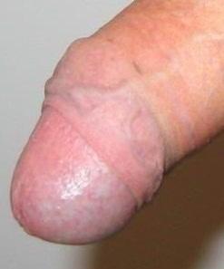 головка члена после частичного обрезания