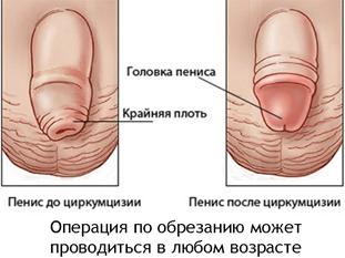 Обрезание крайней плоти вид до и после