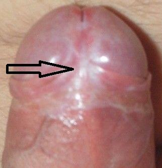 Рубец на уздечке, белые рубцы после пластики, Склероатрофический лихен, фото