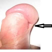 Коротка вуздечка викривляє статевий член, головку