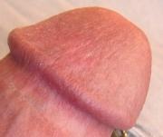 фото головки члена після видалення
