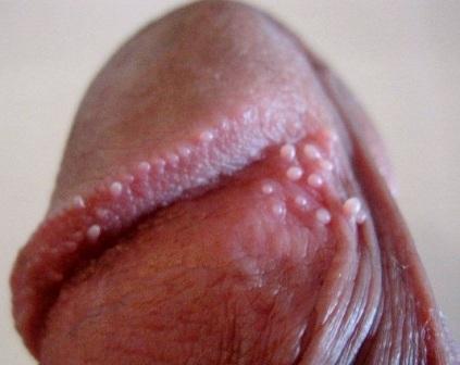 Жемчужные папулы на венце головки и возле уздечки