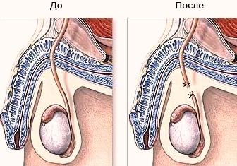 Вазэктомия до и после