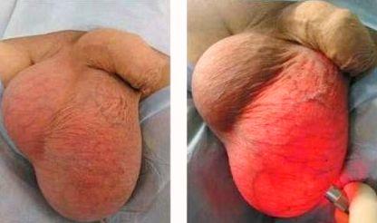 Діагноз «Водянка яєчка»