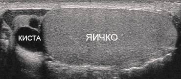 Киста яичка на УЗИ Николаев