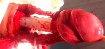Корпоропластика з ендокавернозним фаллопротезуванням