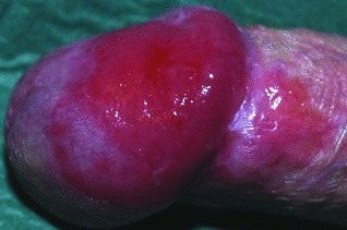 erythroplasia-of-queyrat