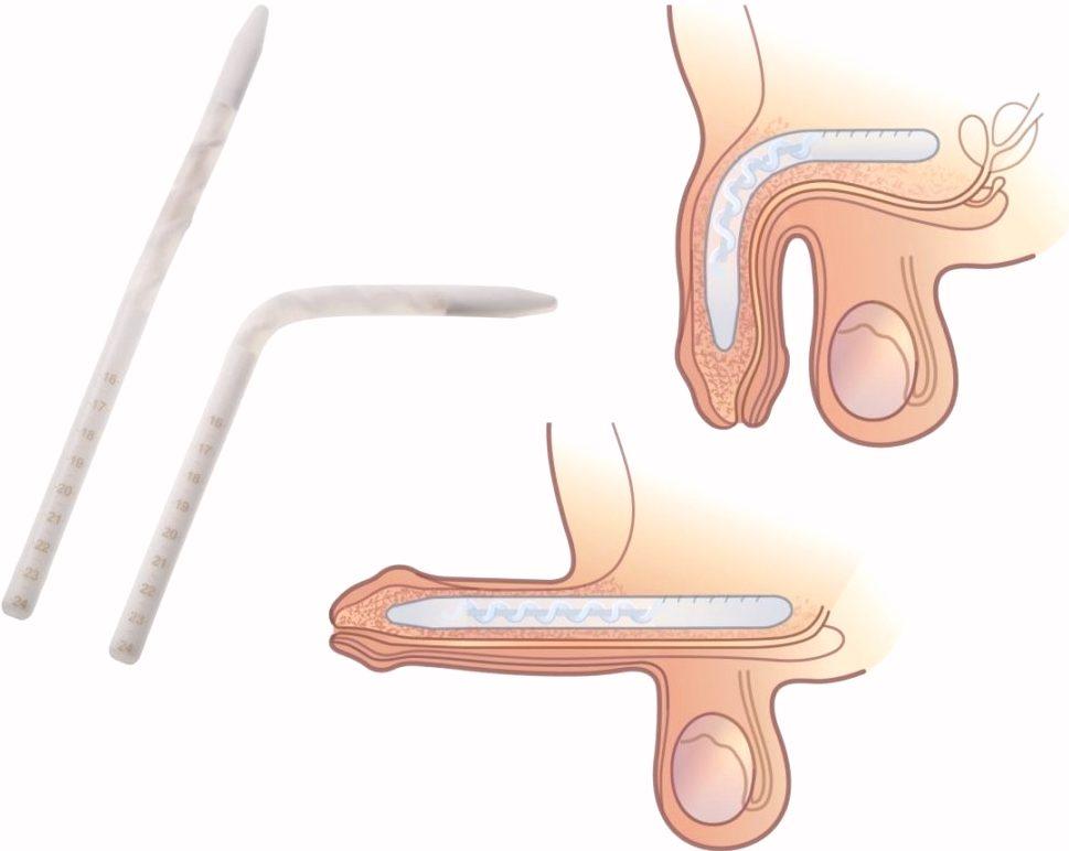Полужесткие протезы полового члена