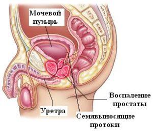 от хламидиоза развивается простатит