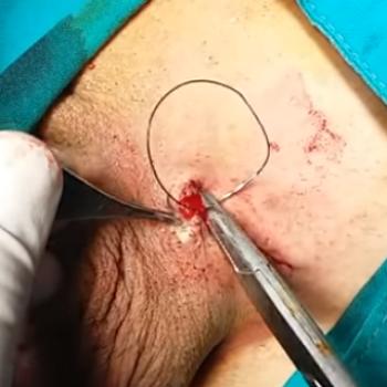 Погружение канатика в ложе, послойное ушивание раны. Наложение косметического шва