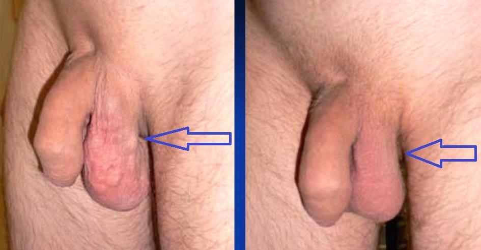 результат до операции и после операции мармара
