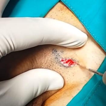Рассечение кожи над семенным канатиком