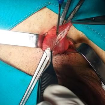 Вскрытие наружной семенной фасции, выделение вен лозовидного сплетения