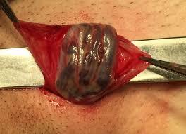 Лечение варикоцеле операция фото