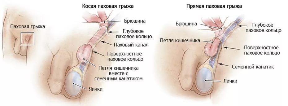 киста семенного канатика. фото