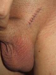 Фото мошонки ребенка после операции