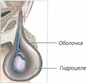 Водянка яичка фото