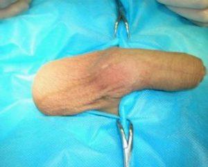 имплантация яичка в мошонку фото