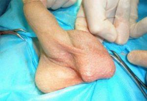 протезирование яичка в мошонку фото