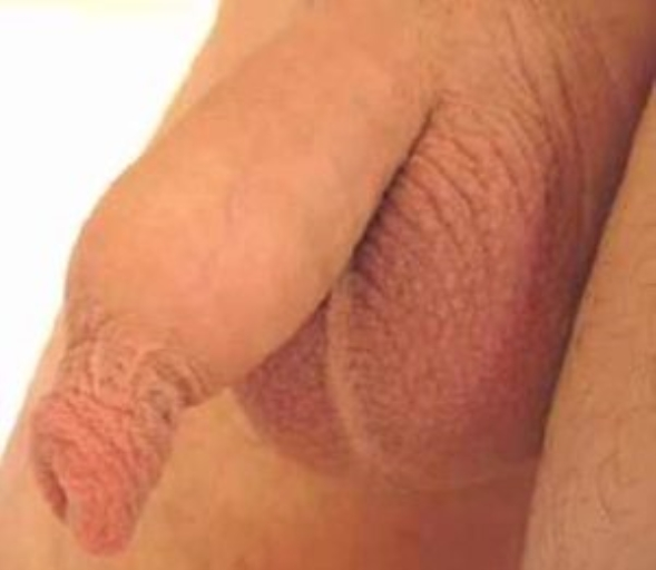 Гипертрофия крайней плоти