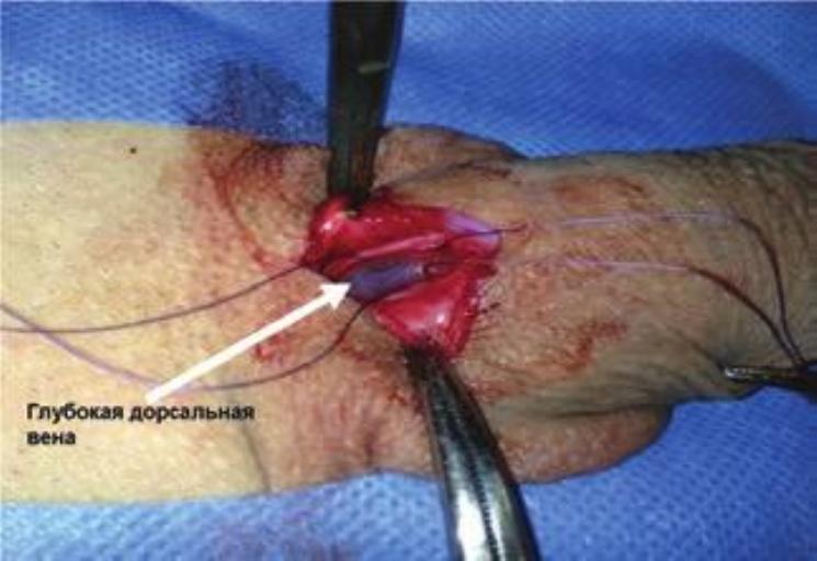 Операция по устранению патологической венозной утечки полового члена