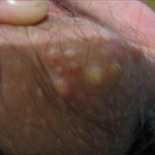 гранулы Фордайса на половых губах