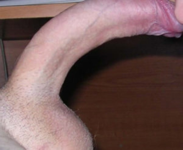 Фото большого искривления полового члена в левую сторону