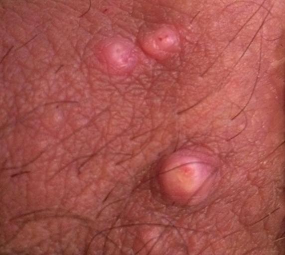 Воспаление жировиков на мошонке