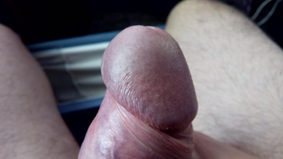Фото закрытой головки члена, Скрытый половой член: что это, как выглядит 27 фотография