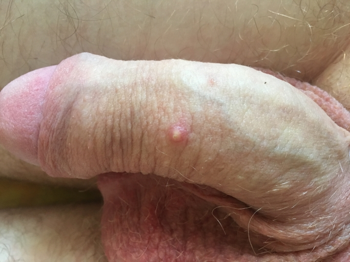 Болячка на стволе полового члена