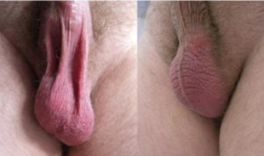 Фото до и после подтяжки мошонки