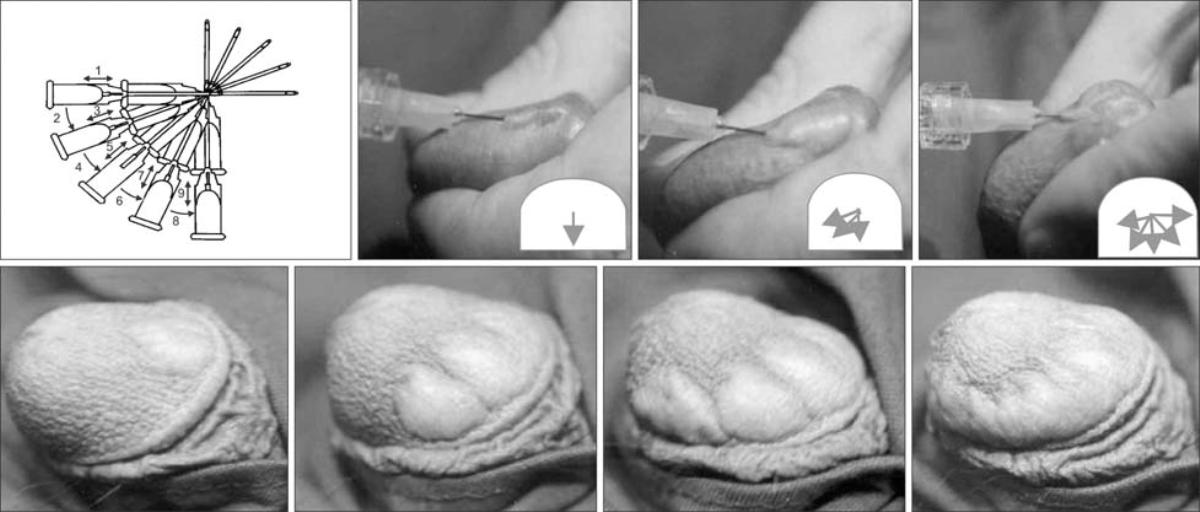 Методика интимного филлинга члена гиалуроновой кислотой