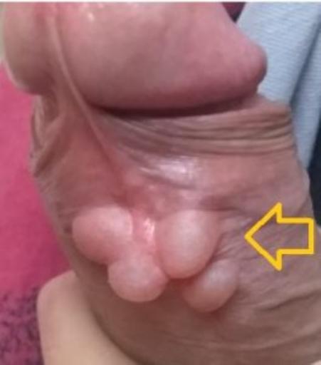 множественные кисты крайней плоти полового члена.