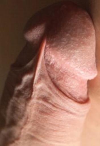 Результат после операции На крайней плоти