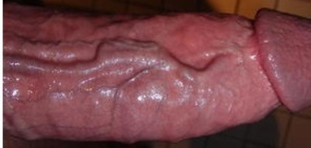 Поверхностных варикозно - расширенных вен полового члена